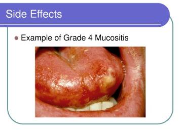 most pathogens that gain access through the skin